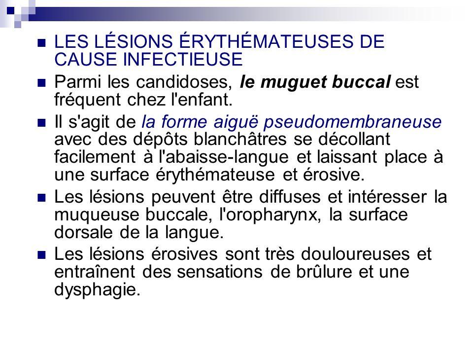 LES LÉSIONS ÉRYTHÉMATEUSES DE CAUSE INFECTIEUSE