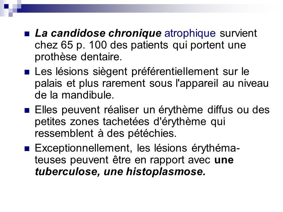 La candidose chronique atrophique survient chez 65 p