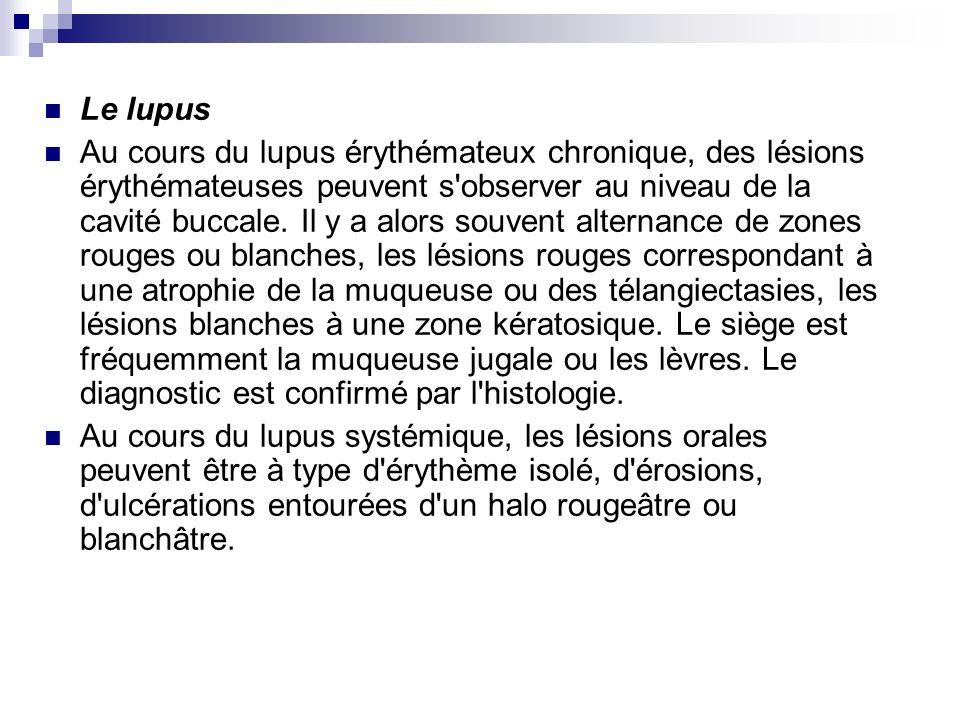 Le lupus