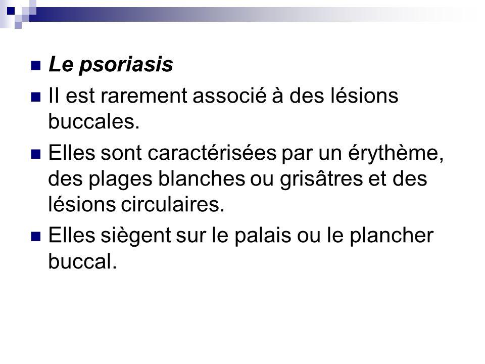 Le psoriasis II est rarement associé à des lésions buccales.