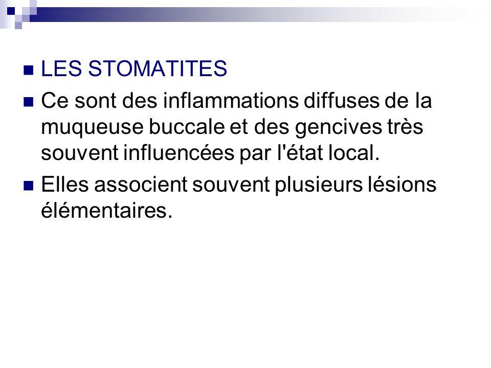 LES STOMATITES Ce sont des inflammations diffuses de la muqueuse buccale et des gencives très souvent influencées par l état local.