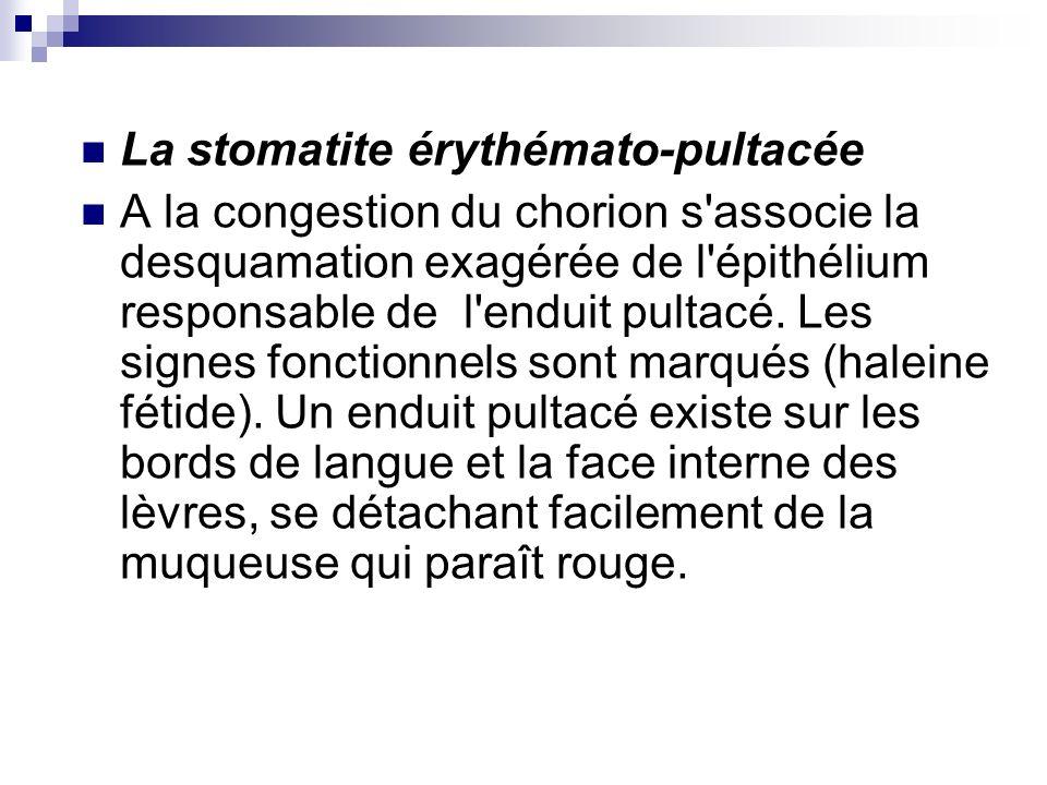 La stomatite érythémato-pultacée