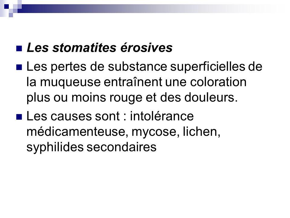 Les stomatites érosives