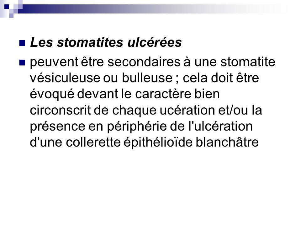 Les stomatites ulcérées