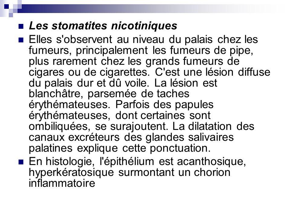 Les stomatites nicotiniques