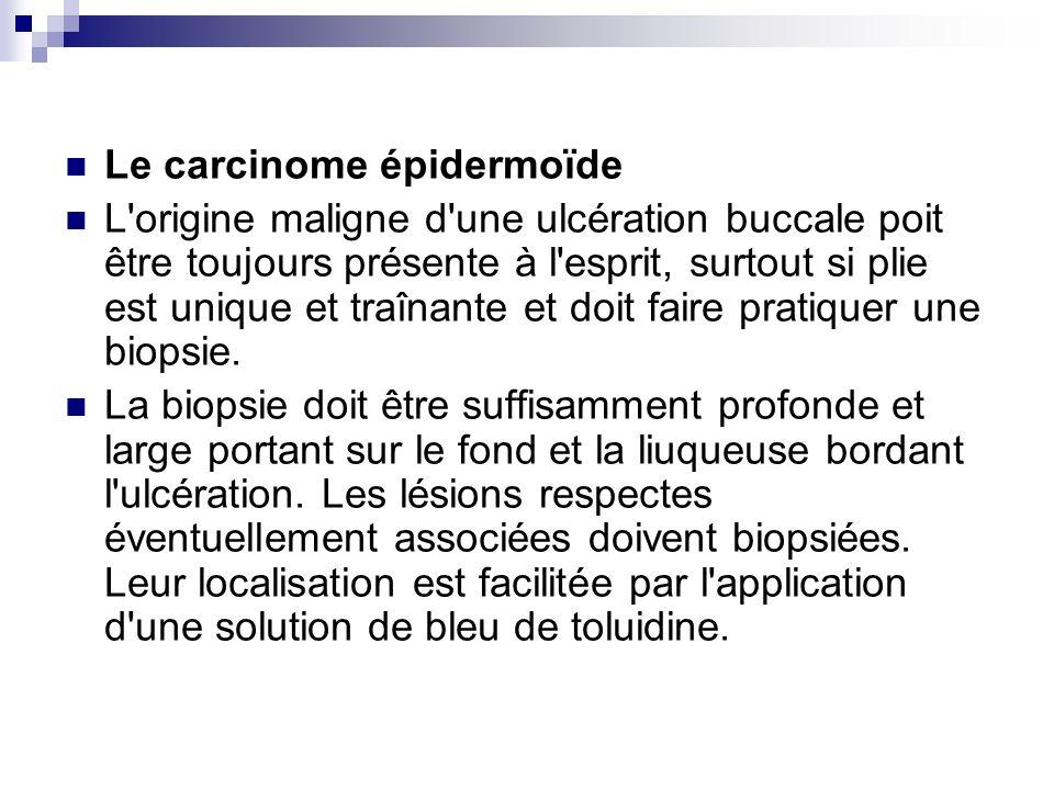 Le carcinome épidermoïde