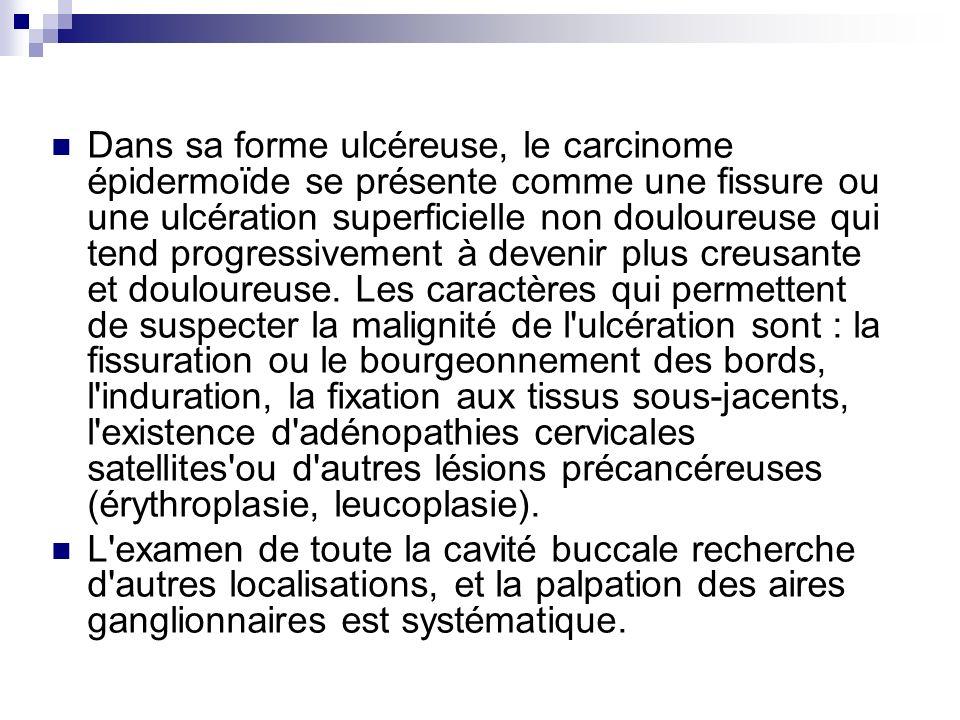 Dans sa forme ulcéreuse, le carcinome épidermoïde se présente comme une fissure ou une ulcération superficielle non douloureuse qui tend progressivement à devenir plus creusante et douloureuse. Les caractères qui permettent de suspecter la malignité de l ulcération sont : la fissuration ou le bourgeonnement des bords, l induration, la fixation aux tissus sous-jacents, l existence d adénopathies cervicales satellites ou d autres lésions précancéreuses (érythroplasie, leucoplasie).