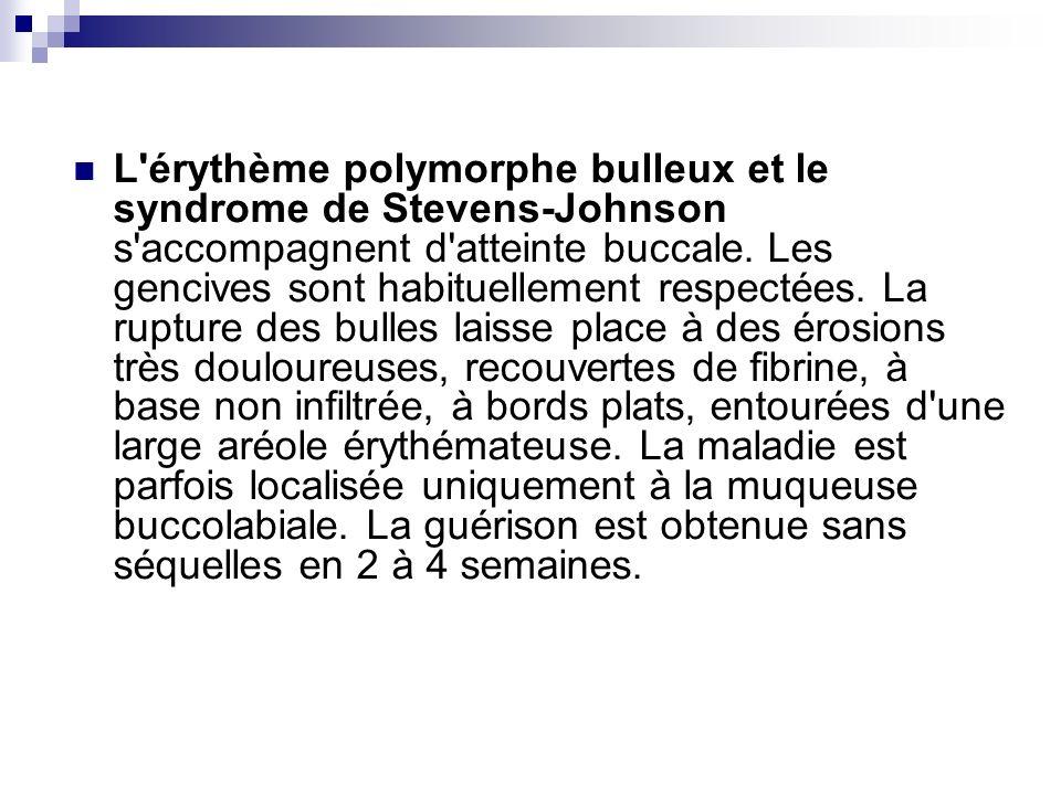 L érythème polymorphe bulleux et le syndrome de Stevens-Johnson s accompagnent d atteinte buccale.