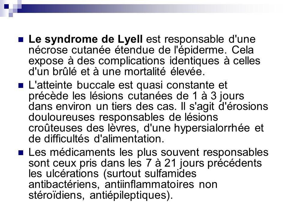 Le syndrome de Lyell est responsable d une nécrose cutanée étendue de l épiderme. Cela expose à des complications identiques à celles d un brûlé et à une mortalité élevée.