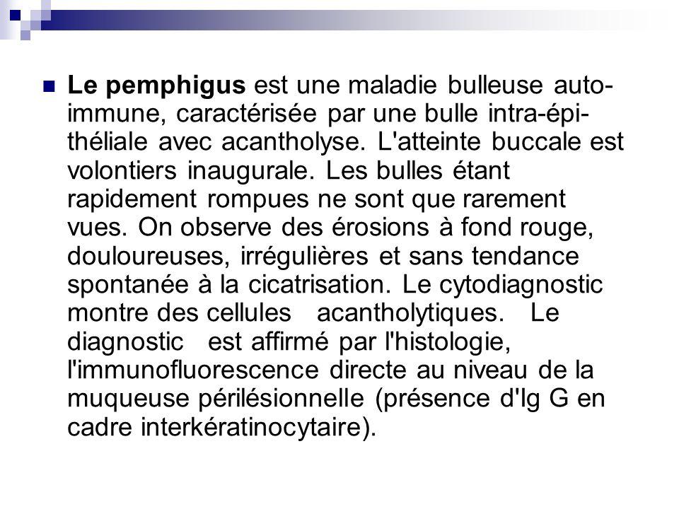 Le pemphigus est une maladie bulleuse auto-immune, caractérisée par une bulle intra-épi-théliale avec acantholyse.