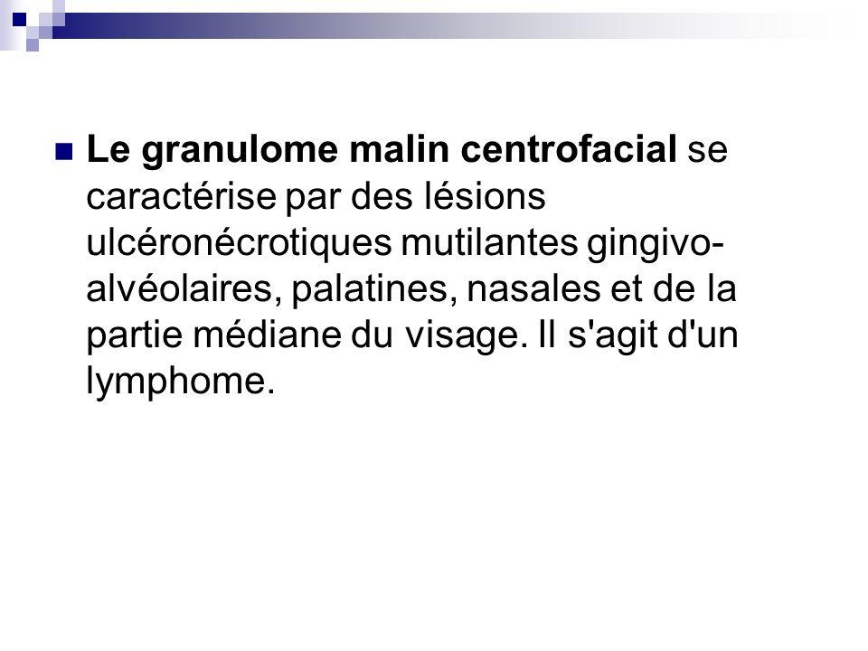 Le granulome malin centrofacial se caractérise par des lésions ulcéronécrotiques mutilantes gingivo-alvéolaires, palatines, nasales et de la partie médiane du visage.