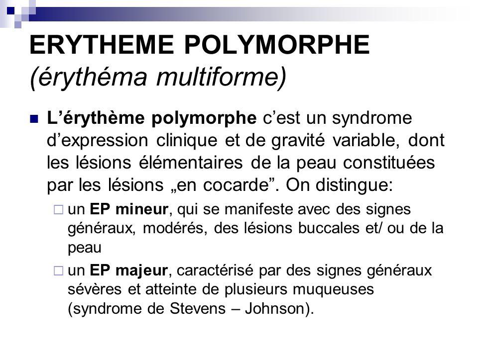 ERYTHEME POLYMORPHE (érythéma multiforme)