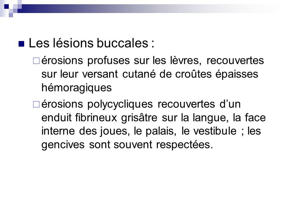 Les lésions buccales : érosions profuses sur les lèvres, recouvertes sur leur versant cutané de croûtes épaisses hémoragiques.