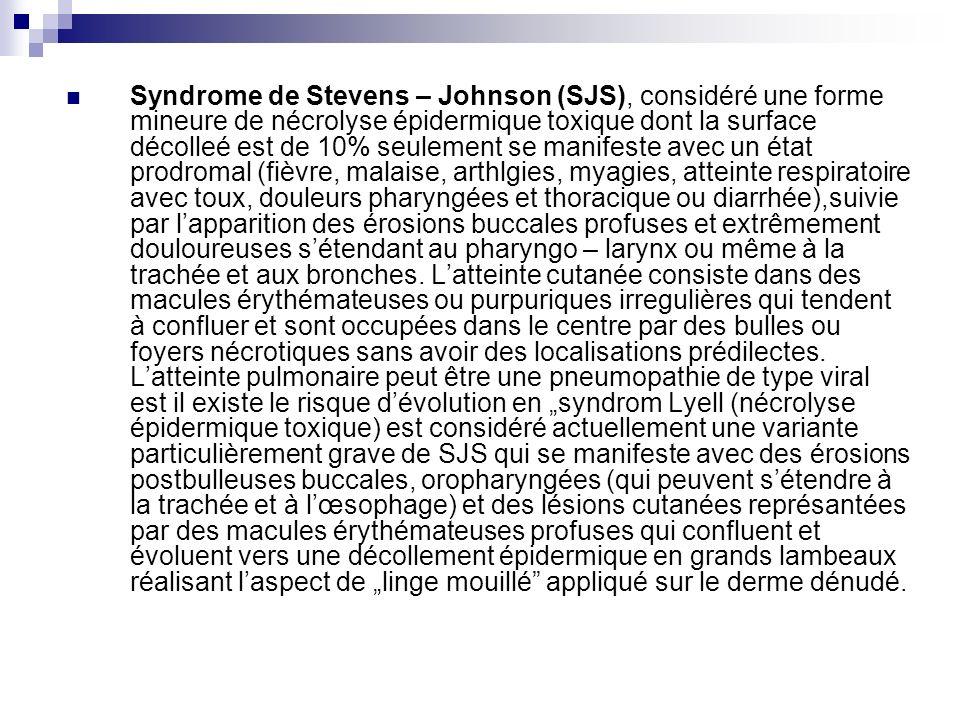 Syndrome de Stevens – Johnson (SJS), considéré une forme mineure de nécrolyse épidermique toxique dont la surface décolleé est de 10% seulement se manifeste avec un état prodromal (fièvre, malaise, arthlgies, myagies, atteinte respiratoire avec toux, douleurs pharyngées et thoracique ou diarrhée),suivie par l'apparition des érosions buccales profuses et extrêmement douloureuses s'étendant au pharyngo – larynx ou même à la trachée et aux bronches.