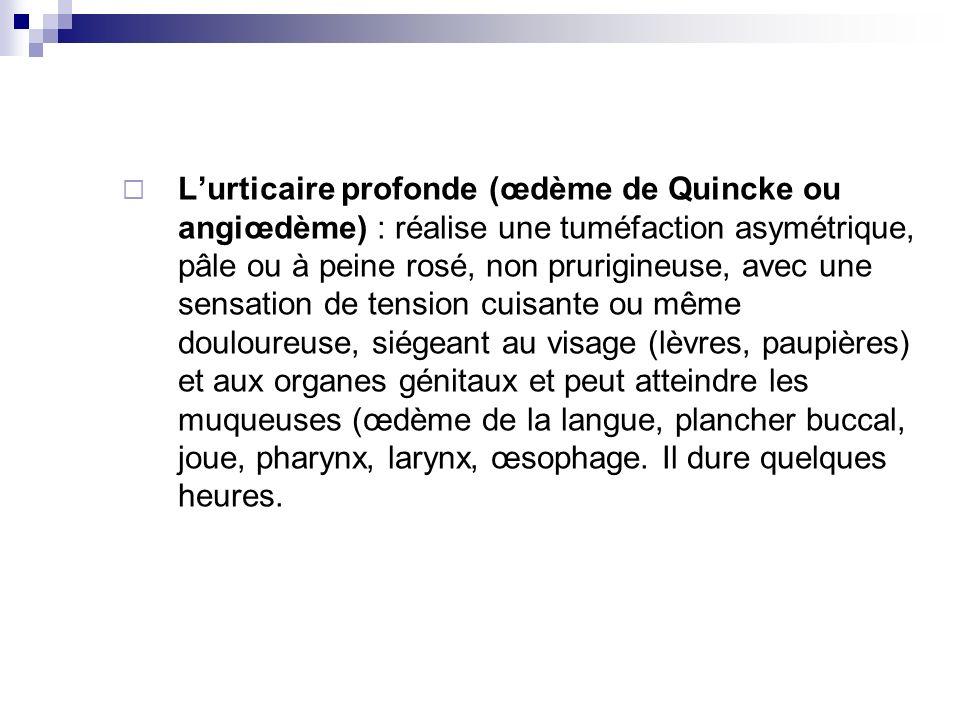 L'urticaire profonde (œdème de Quincke ou angiœdème) : réalise une tuméfaction asymétrique, pâle ou à peine rosé, non prurigineuse, avec une sensation de tension cuisante ou même douloureuse, siégeant au visage (lèvres, paupières) et aux organes génitaux et peut atteindre les muqueuses (œdème de la langue, plancher buccal, joue, pharynx, larynx, œsophage.
