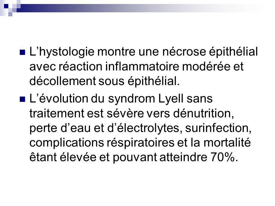 L'hystologie montre une nécrose épithélial avec réaction inflammatoire modérée et décollement sous épithélial.