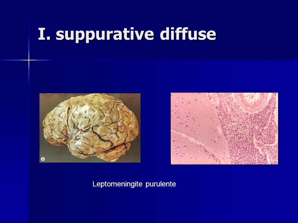 I. suppurative diffuse Leptomeningite purulente