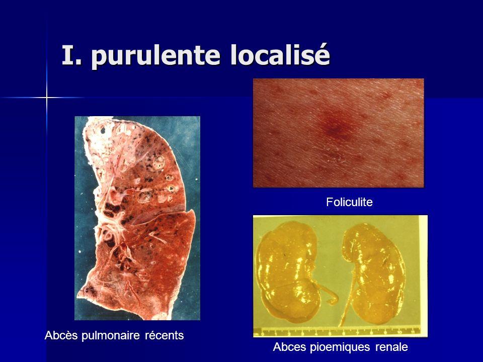 I. purulente localisé Foliculite Abcès pulmonaire récents