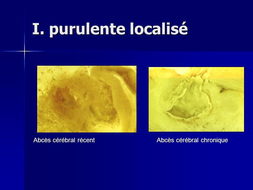 I. purulente localisé Abcès cérébral récent Abcès cérébral chronique