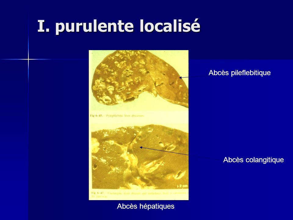 I. purulente localisé Abcès pileflebitique Abcès colangitique
