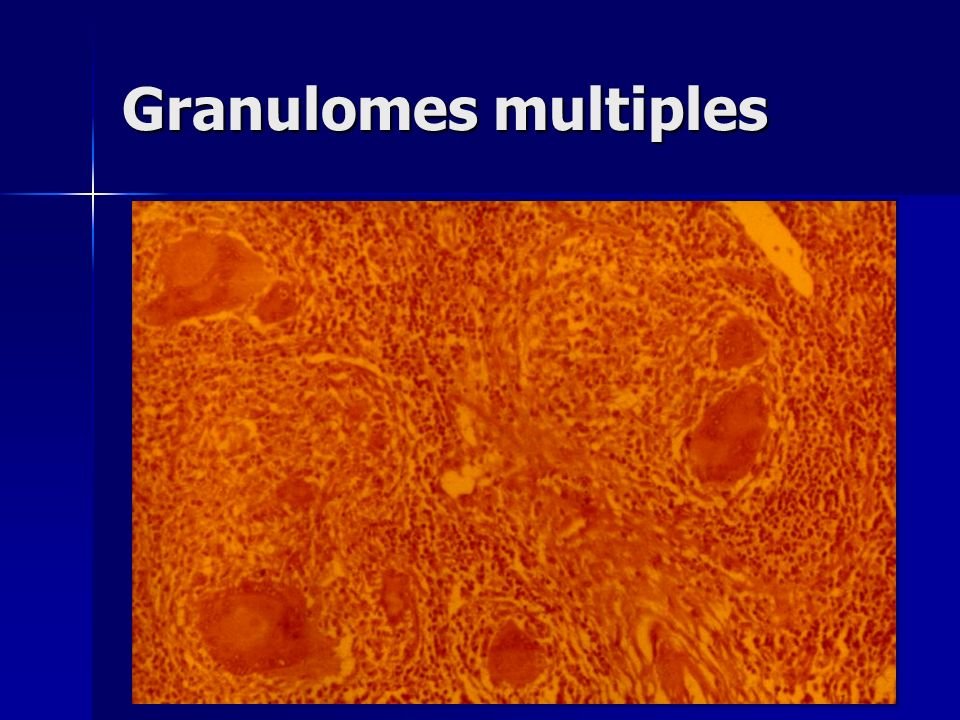 Granulomes multiples