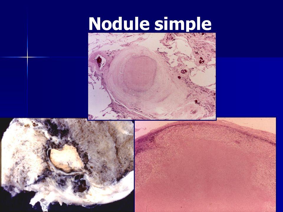 Nodule simple