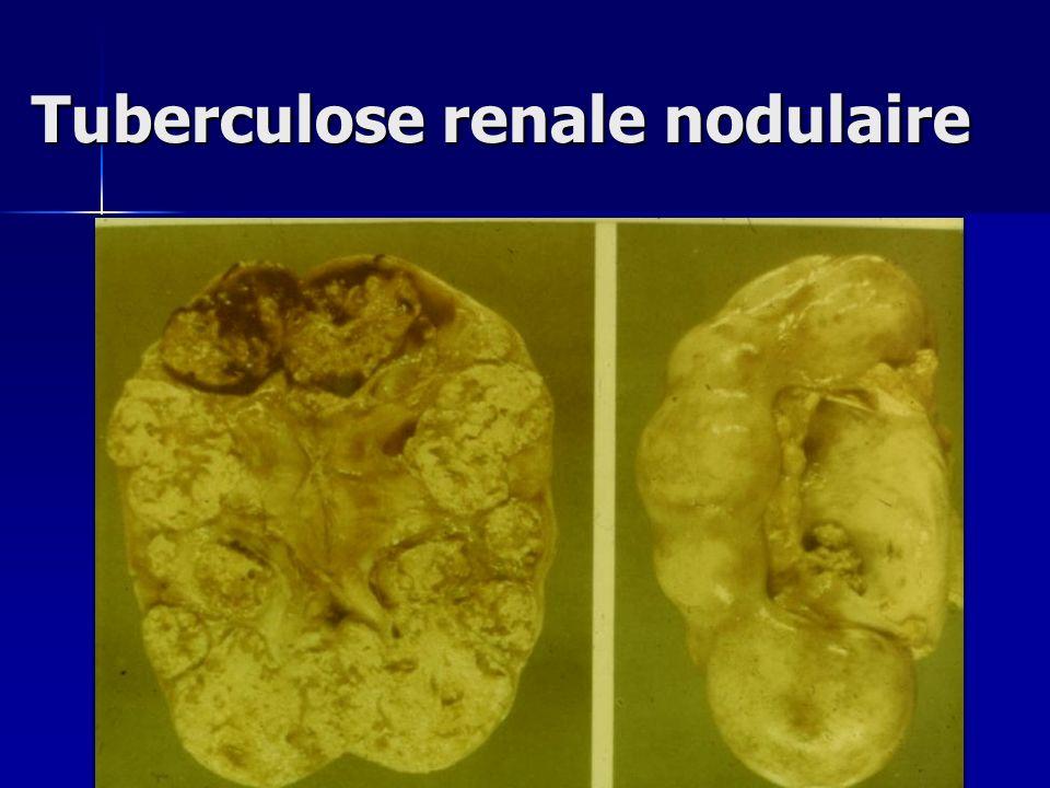 Tuberculose renale nodulaire