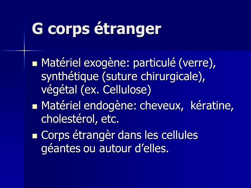 G corps étranger Matériel exogène: particulé (verre), synthétique (suture chirurgicale), végétal (ex. Cellulose)