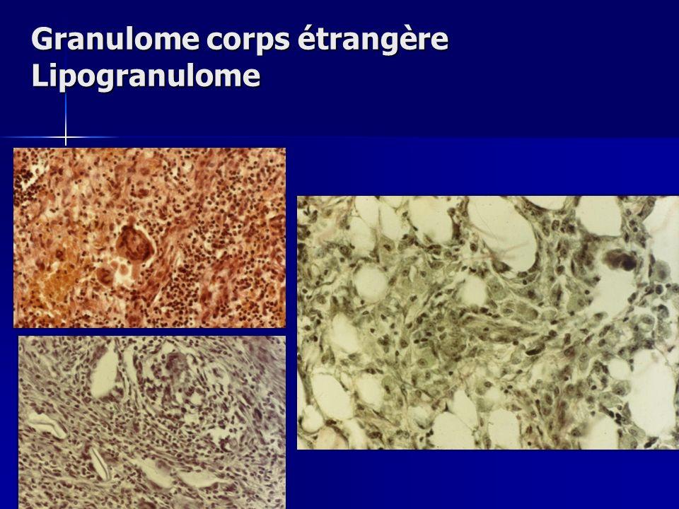 Granulome corps étrangère Lipogranulome