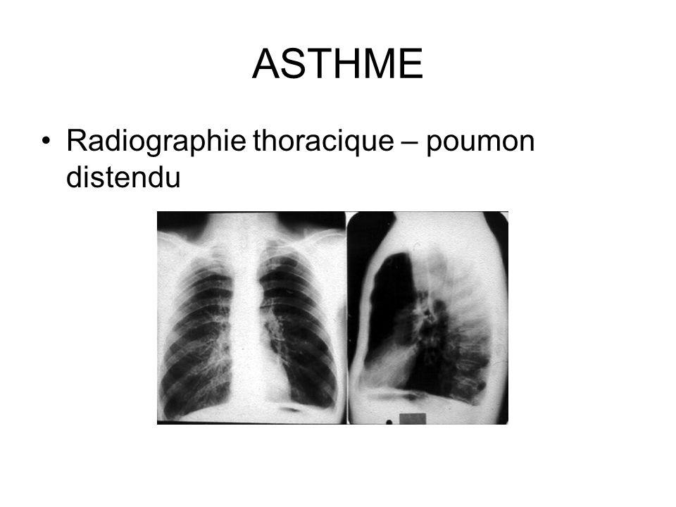 ASTHME Radiographie thoracique – poumon distendu