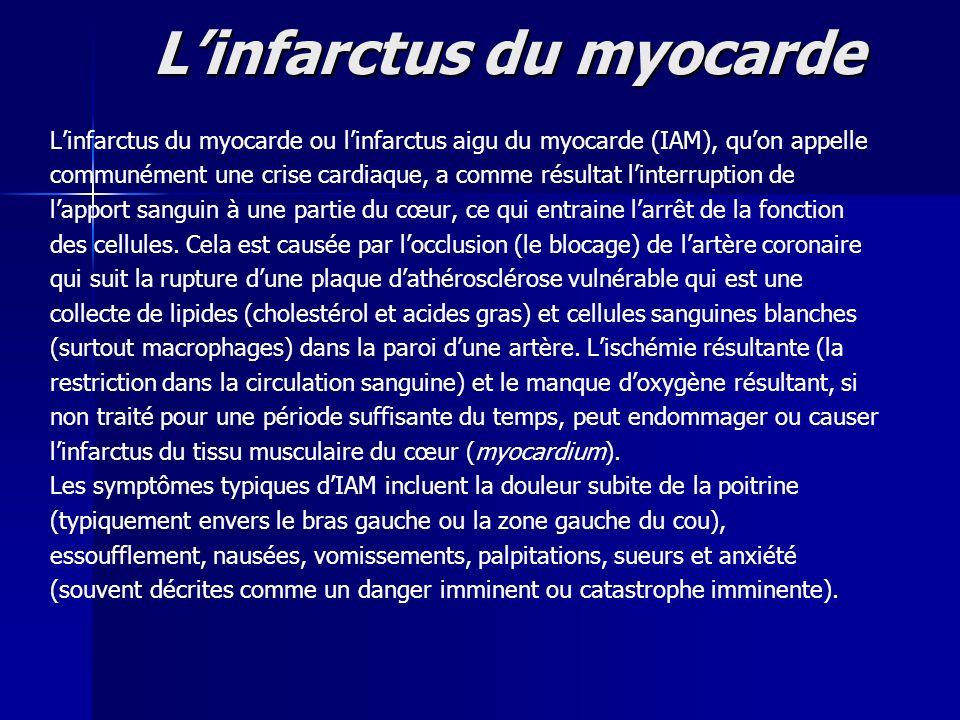 L'infarctus du myocarde