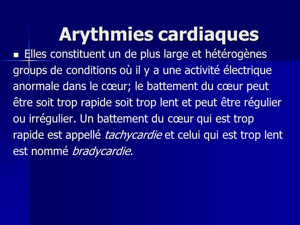 Arythmies cardiaques Elles constituent un de plus large et hétérogènes