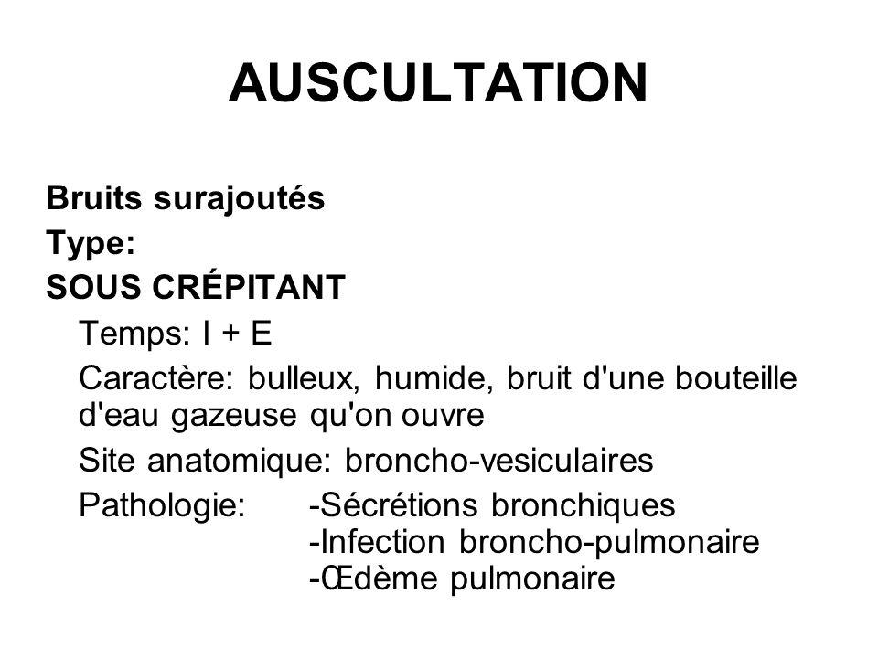 AUSCULTATION Bruits surajoutés Type: SOUS CRÉPITANT Temps: I + E