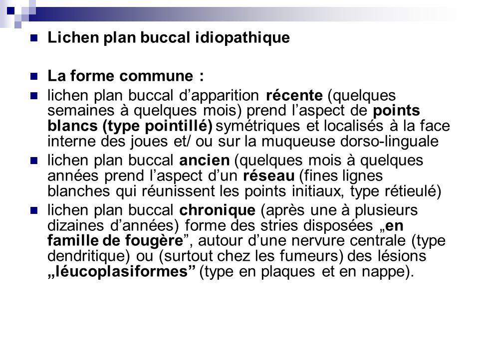 Lichen plan buccal idiopathique