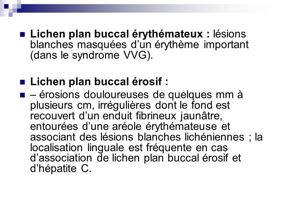 Lichen plan buccal érythémateux : lésions blanches masquées d'un érythème important (dans le syndrome VVG).