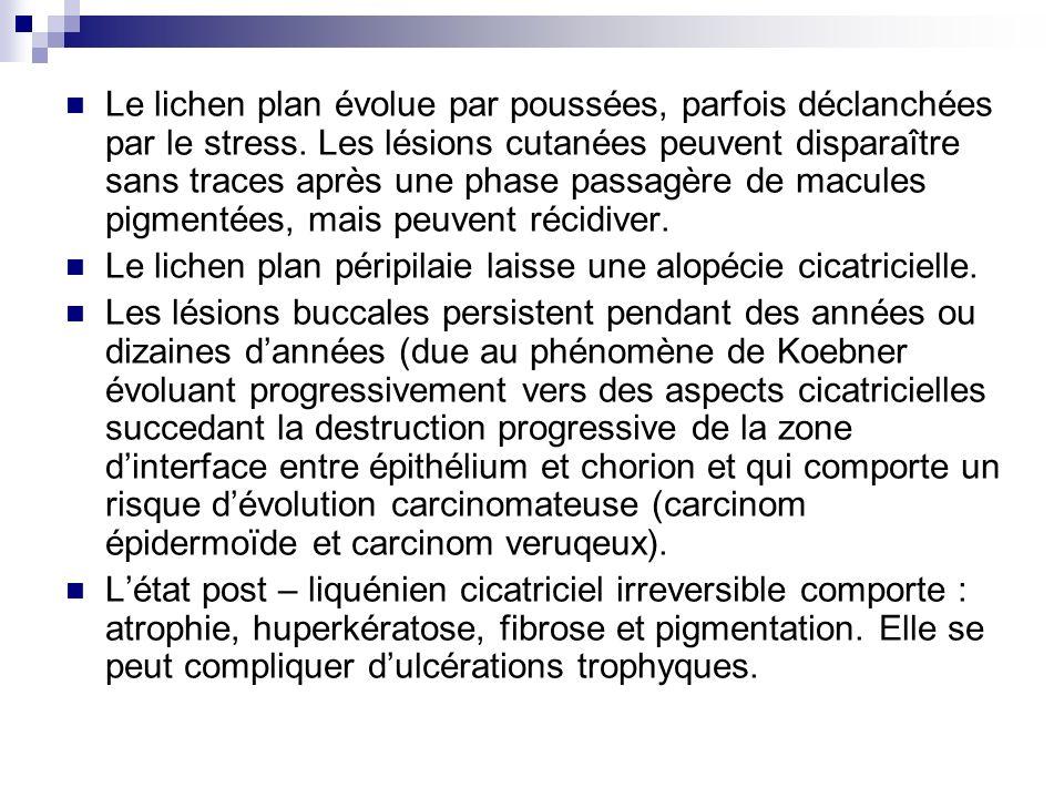 Le lichen plan évolue par poussées, parfois déclanchées par le stress