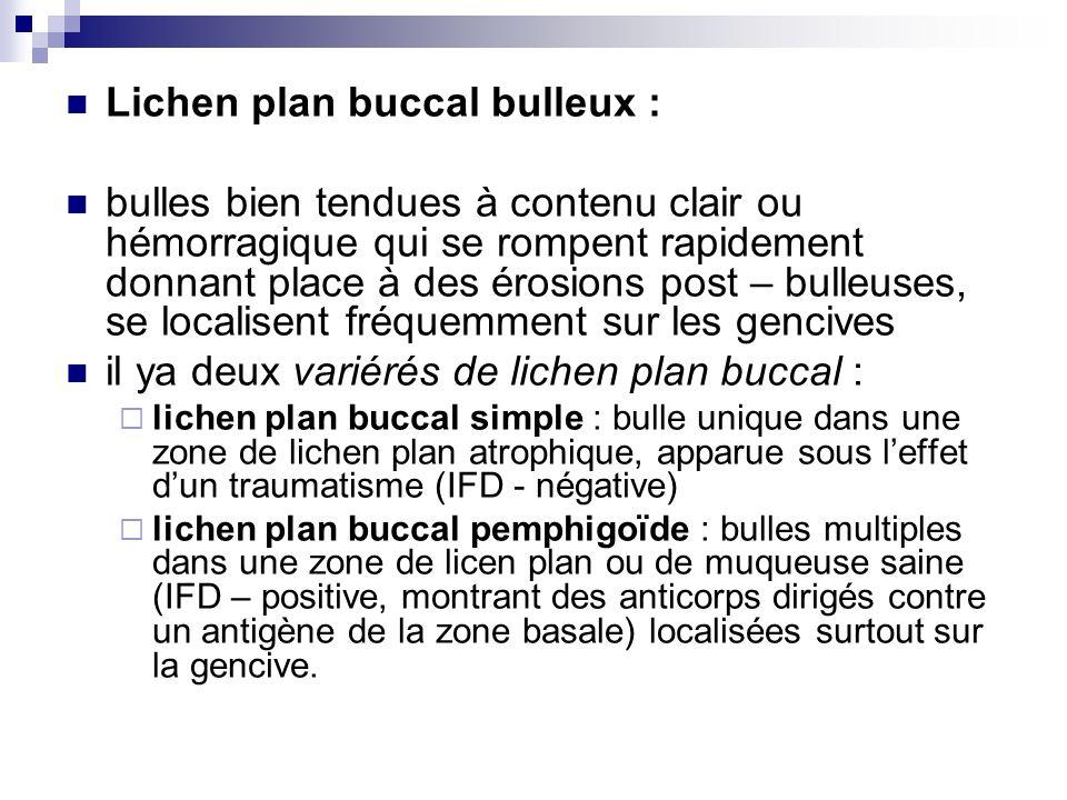 Lichen plan buccal bulleux :