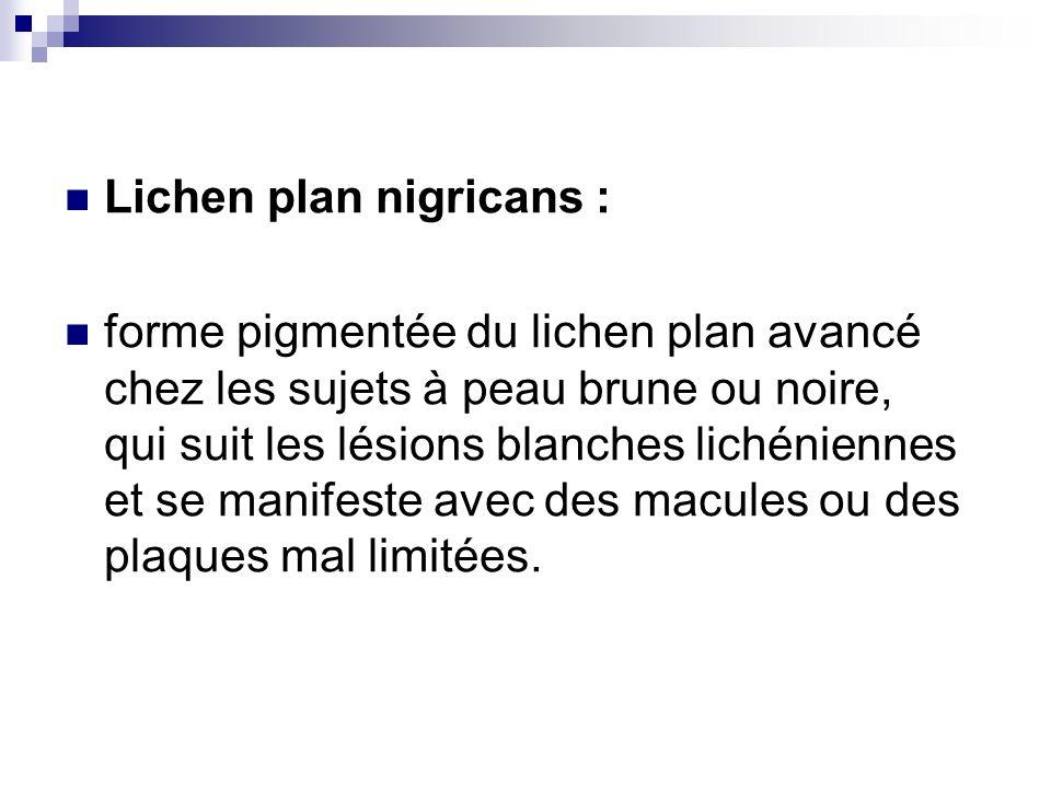 Lichen plan nigricans :