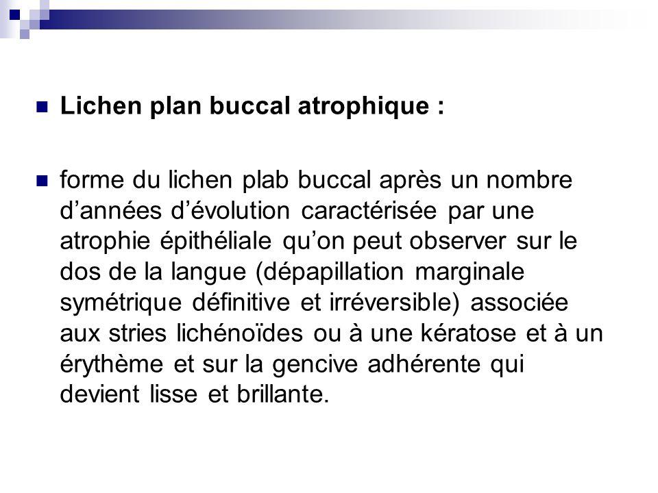 Lichen plan buccal atrophique :