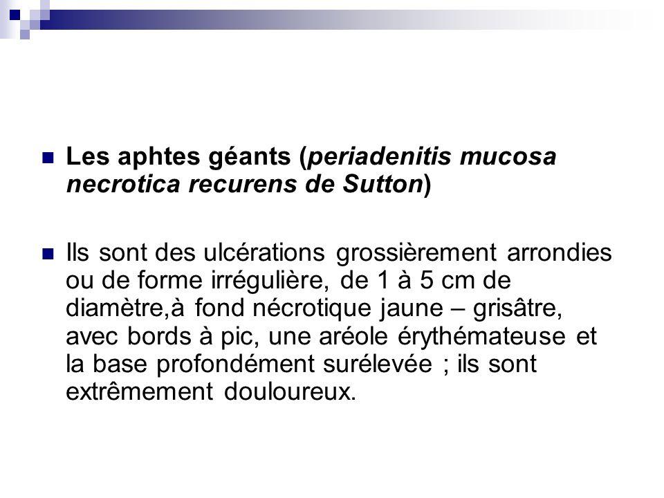Les aphtes géants (periadenitis mucosa necrotica recurens de Sutton)