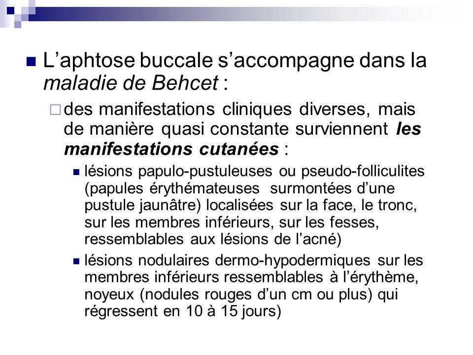L'aphtose buccale s'accompagne dans la maladie de Behcet :