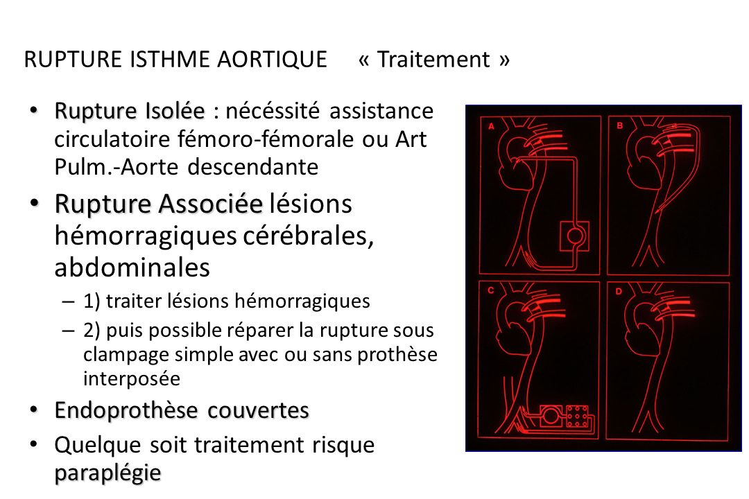 RUPTURE ISTHME AORTIQUE « Traitement »