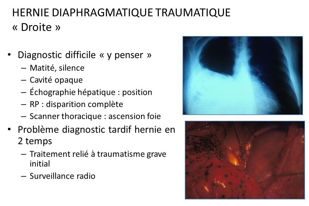 HERNIE DIAPHRAGMATIQUE TRAUMATIQUE « Droite »