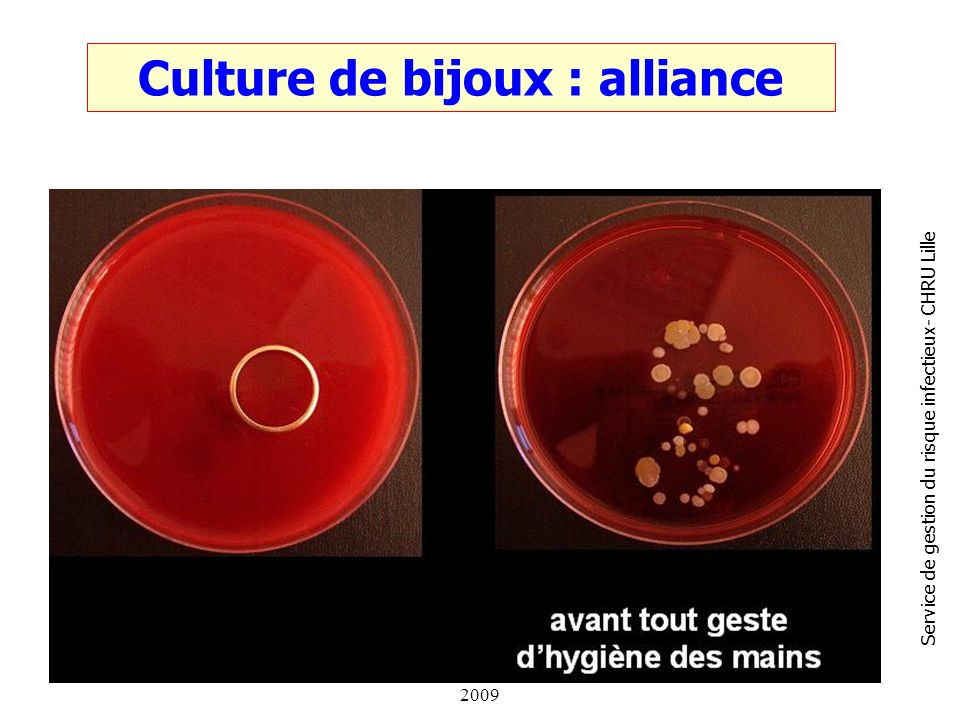Culture de bijoux : alliance