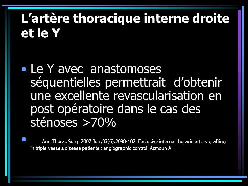 L'artère thoracique interne droite et le Y