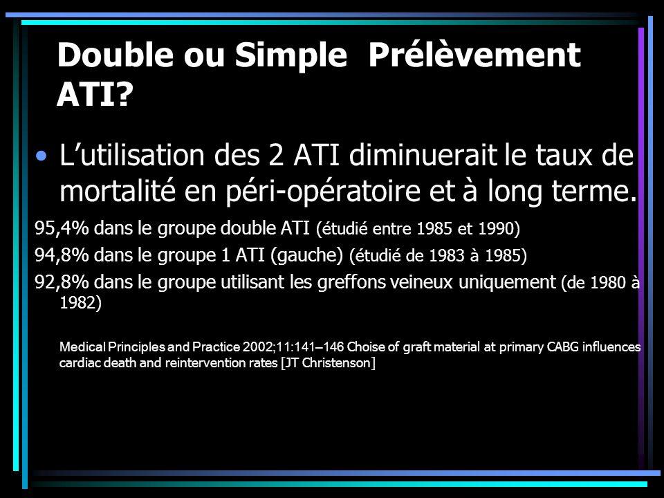 Double ou Simple Prélèvement ATI