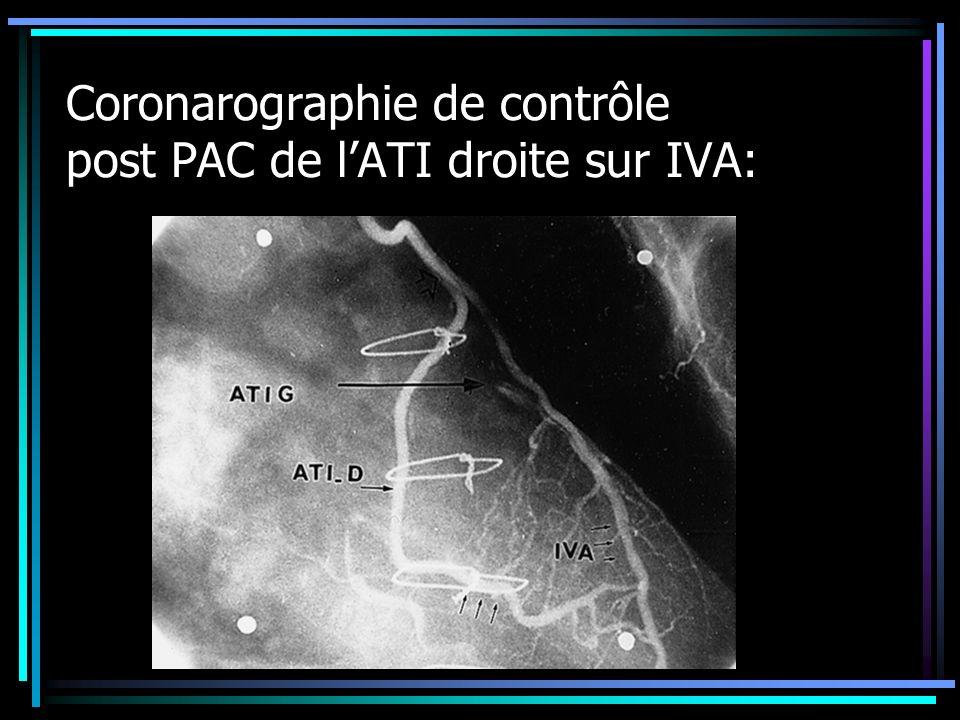 Coronarographie de contrôle post PAC de l'ATI droite sur IVA: