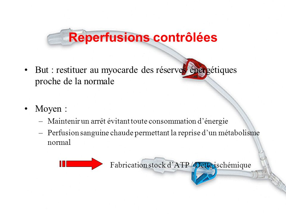 Reperfusions contrôlées