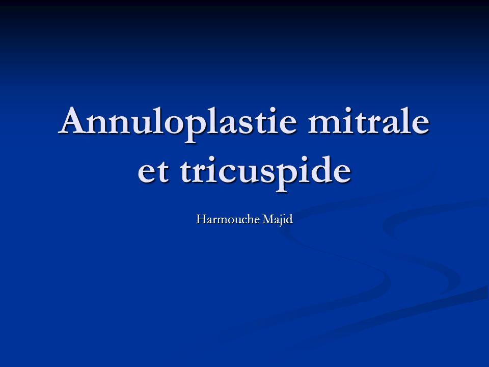Annuloplastie mitrale et tricuspide