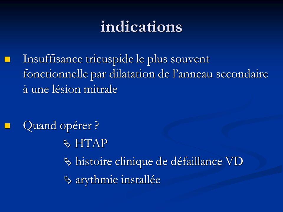 indications Insuffisance tricuspide le plus souvent fonctionnelle par dilatation de l'anneau secondaire à une lésion mitrale.